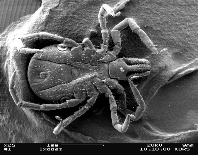http://www.brown.edu/Courses/Bio_160/Projects2005/lyme_disease/Images/Ixodes%20EM.jpg